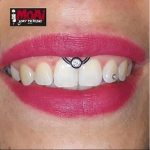 Smiley Piercing. Moai Body Piercing - Jonathan 347.0661852 - Salita del Prione 2r - 16123 Genova